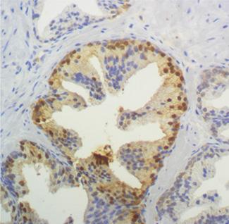 biopsia de prostata negativa para neoplasia y