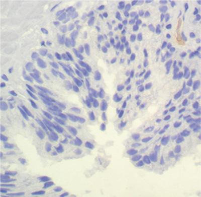 neoplasia intraepitelial prostatica (pin) de alto grado