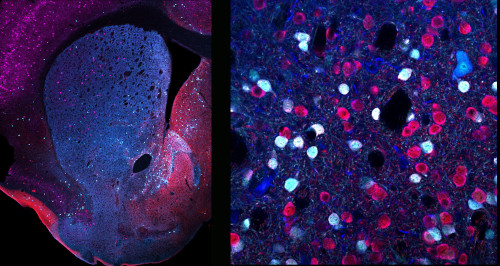 neuronas con receptores D2